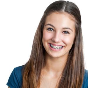 Zahnpflege beim Tragen einer Zahnspange
